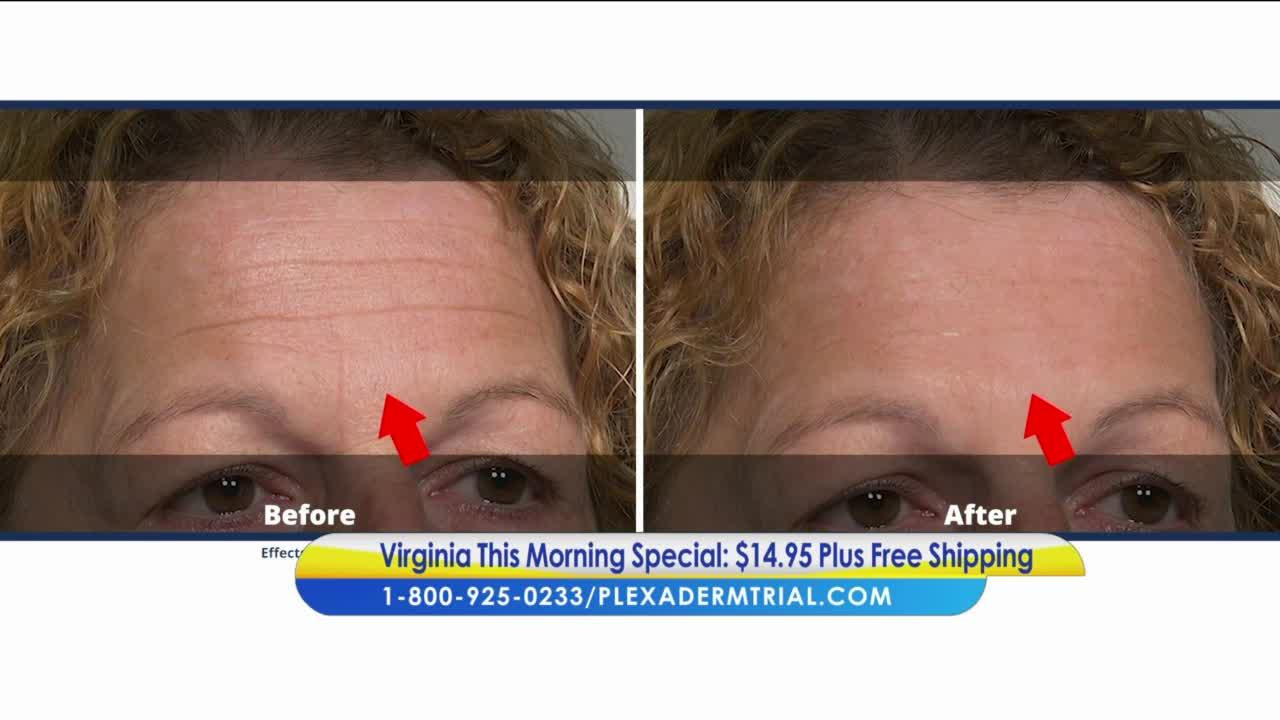 Look years younger with Plexaderm's 10 minute challenge