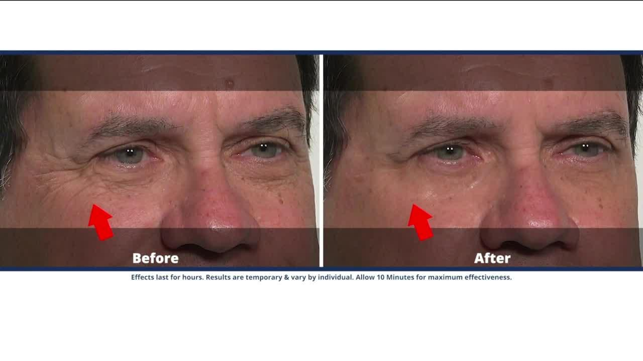 Take years off your look with Plexaderm's 10 minute challenge