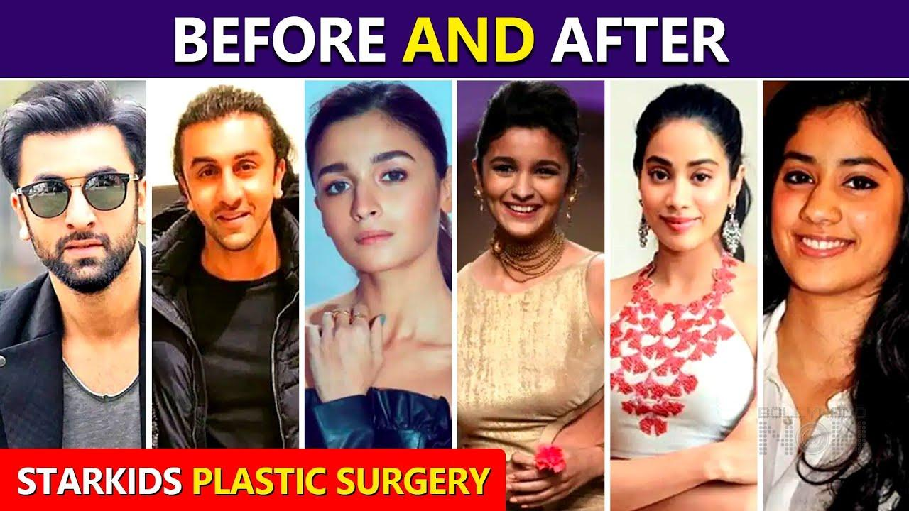STAR KIDS Who Took Help Of Surgery To Look Gorgeous   Janhvi Kapoor, Alia Bhatt, Ranbir Kapoor