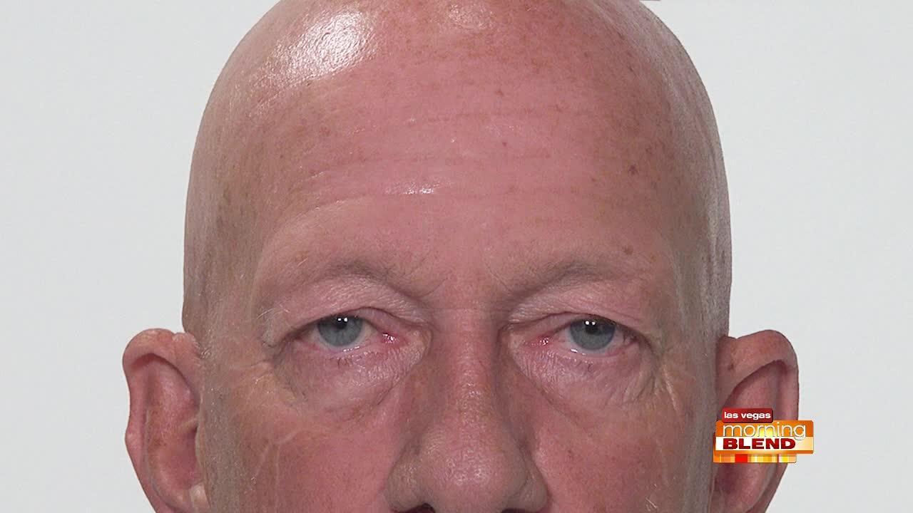 Reduce Under Eye Bags & Wrinkles
