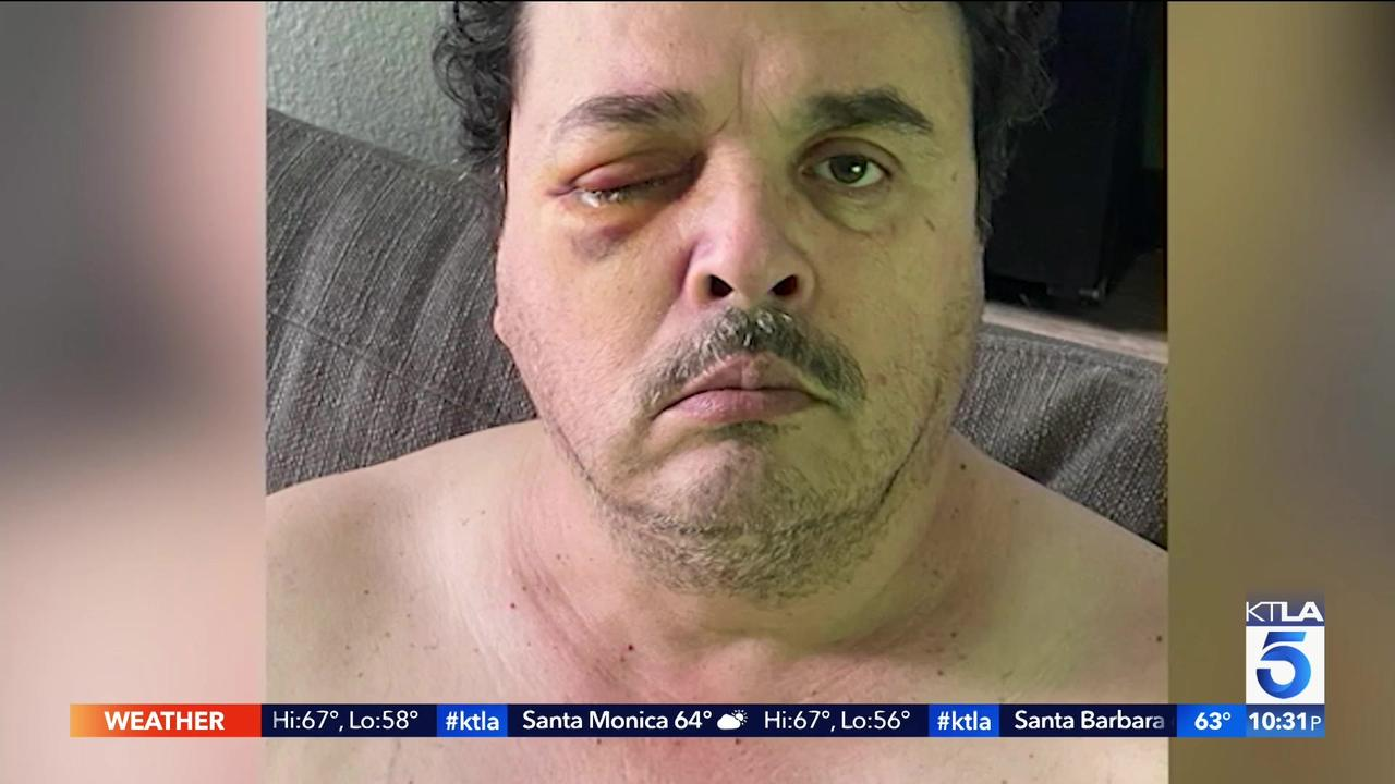 Violent attack could cost Lyft driver his sight