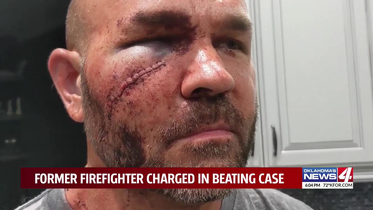 'He's getting off really easily': Ex- firefighter charged after allegedly beating man unconscious